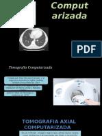 tomografia 1