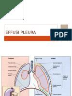 Effusi Pleura