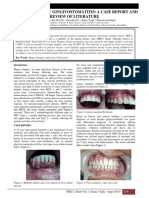 Gingivostomatitis Eng Literatur