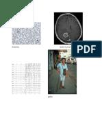 Anemiabrain Tumor