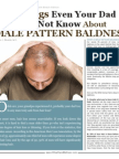5 Things About Male Pattern Hair Loss June2016 DrAlanBauman