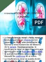 Insuficiencia Renal, Crónica y Aguda