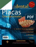 alta tecnica dental - placas gravitacionales