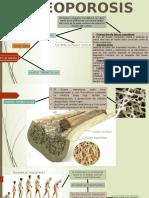 oteoporosis.pptx