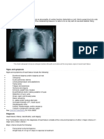 HF Medscape