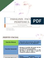 Paralisis facial periferica en MTCh