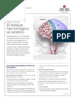 Ataque Cerebral Hemorrágico