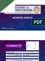 Mordida Abierta