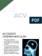 ACV ZTR