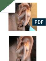 Puntos principales auriculares