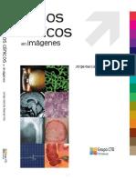 Casos Clinicos en Imagenes CTO - NEFRO