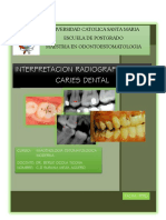 Interpretacion Radiografica de La Caries Dental