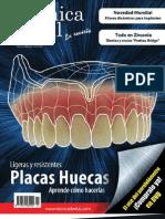 alta tecnica dental - placas huecas