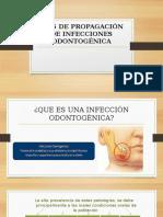 Vías de Propagación de Infecciones Odontogénica