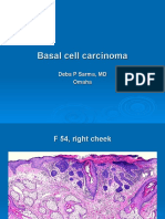 Basal Cell Carcinoma .