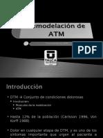 REMODELACION ATM.ppt