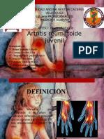 Artritis Reumatoide Juvenil 11
