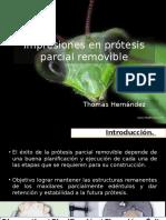 MATERIALES EN PRÓTESIS PARCIAL REMOVIBLE