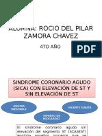 SÍNDROME CORONARIO AGUDO -SICA