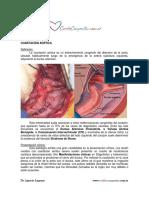 Coartacion-aortica