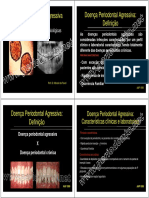 Doenca Periodontal Agressiva