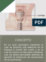 traqueostomia.