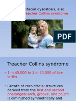 Mandibulofacial Dysostosis, Also Known as Treacher Collins
