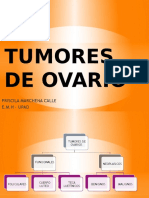 Tumores de Ovario Priscila