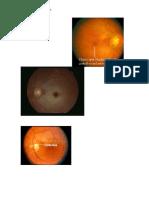 Oclusión arterial retiniana