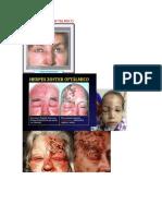Herpes zoster oftalmico V.S Herpes simple oftalmico.docx