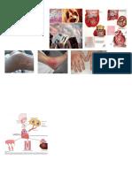 Criterios Jones Fiebre Reumatica