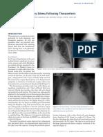 2013 09 38 Images Pulmonary Edema
