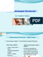 kb-iud-implant-dll.ppt