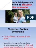 t Collins Syndrome