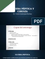 Ulcera péptica y cirugia