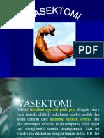 Vasektomi New