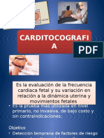 carditocografia