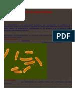Epidemiología de La Salmonellosis
