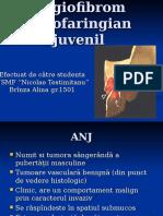 Angiofibrom nazofaringian juvenil