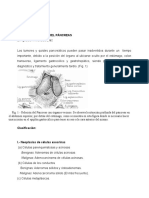 C-VIII-T-19-QUISTES Y TUMORES DEL PANC..doc