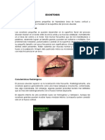 Tumores No Odontogenicos