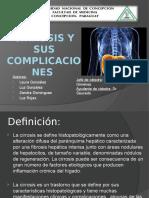 Cirrosis y Sus Complicaciones