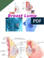 Breast Lump
