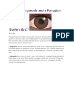 What is a Pinguecula and a Pterygium