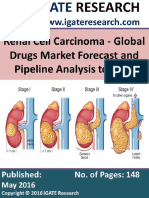 Renal Cell Carcinoma - Global Drugs Market Forecast and Pipeline Analysis
