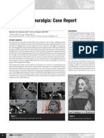 Trigeminal Neuralgia- Case Report and Review