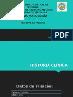 Fractura de Falange.pptx