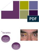 Ppt Ekspore Keratitis