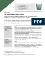 Carcinosarcoma en Trompa Uterina