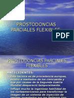 Prostodoncias Parciales Flexibles